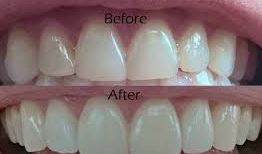 Cosmetic Dentistry Adelaide