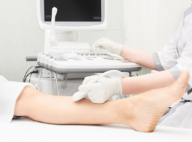 Varicose Vein Treatment Adelaide